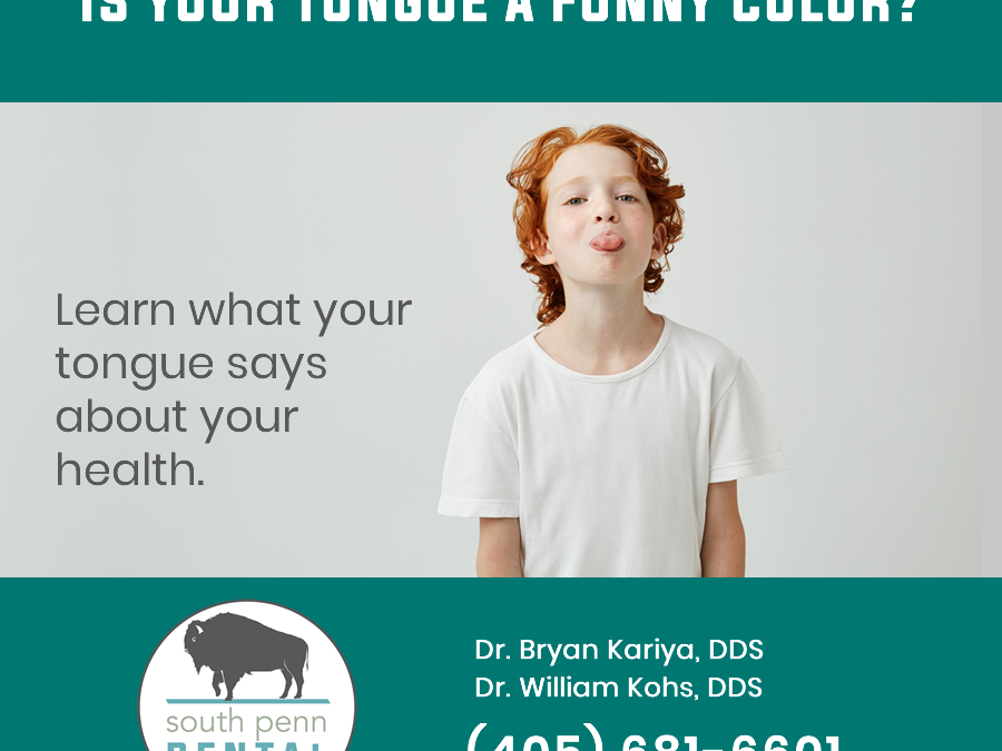 Is Your Tongue A Funny Color?